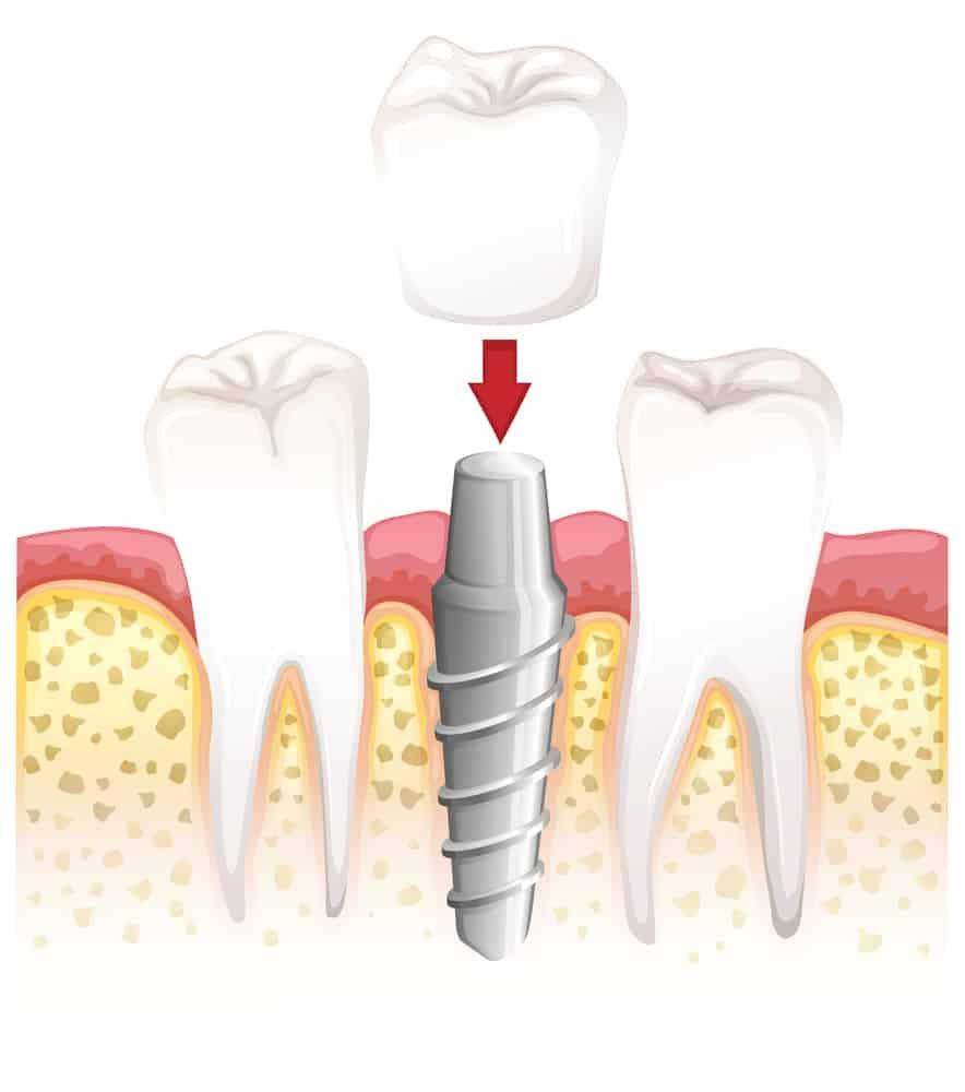 כתרים לשיניים ללא מתכת