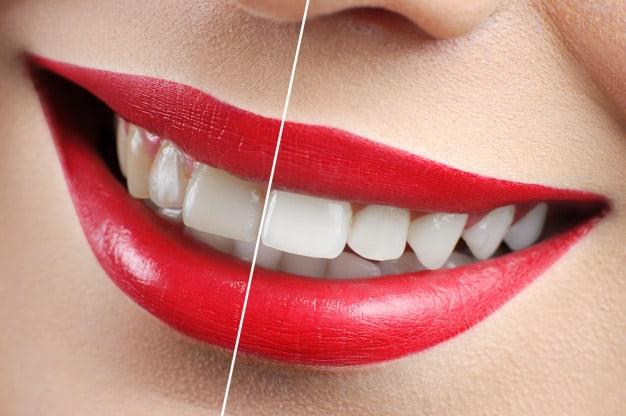 שיניים צהובות – הסיבות ודרכי הטיפול האפשריות