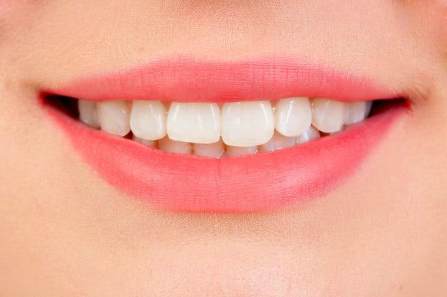 הבהרת שיניים – גם אתם יכולים להתחיל לחייך