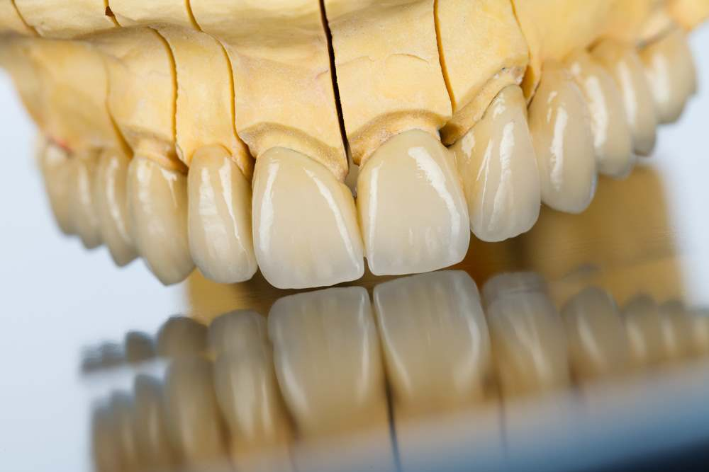 הקשר שבין שחיקת שיניים ושיקום שיניים