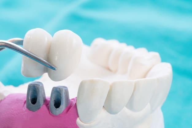 השלמת חוסר שיניים נרחב – אילו שיטות מתאימות?
