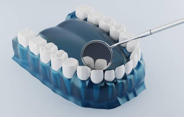 עקירת שן טוחנת
