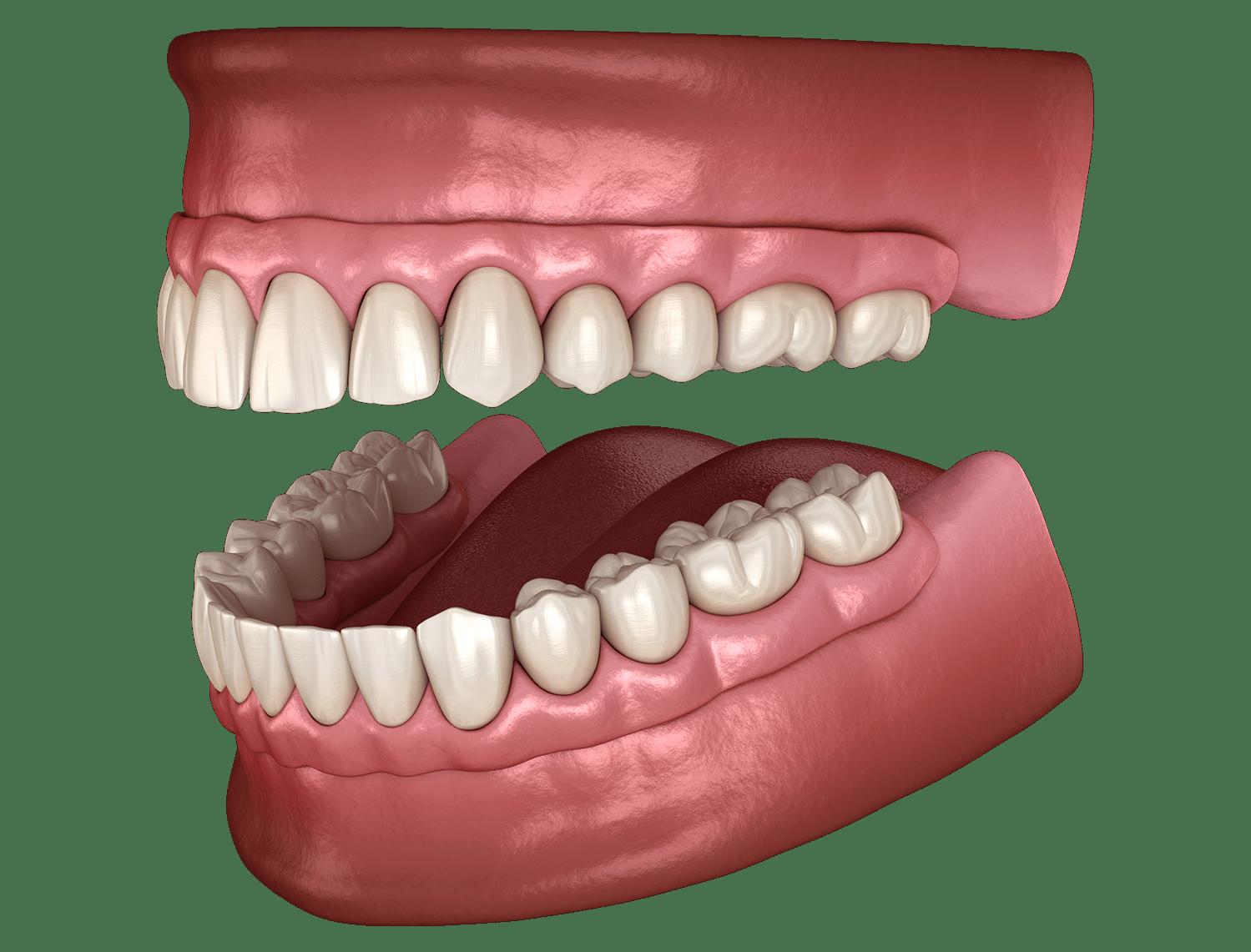 סוגי השיניים התותבות