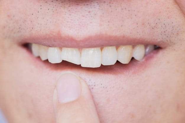איך מטפלים בשן לאחר פציעה?
